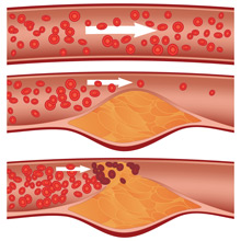 build up in your arteries